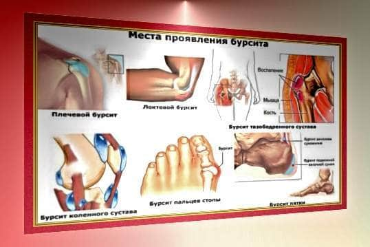 Бурсит домашнее лечение всех видов бурсита